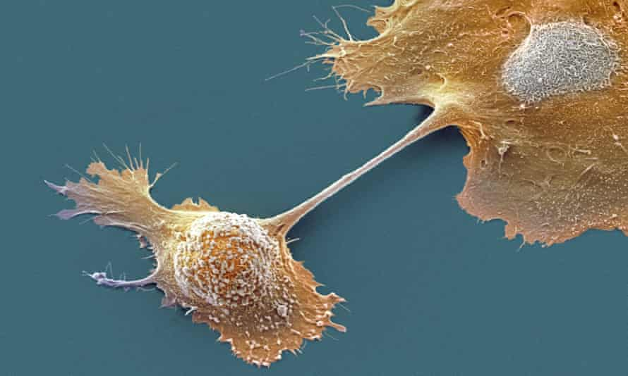 Scanning electron microscope image of pancreatic cancer cells.