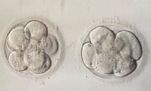 Ruth Whippman embryos