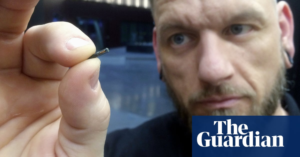 Alarm over talks to implant UK employees with microchips