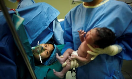 Yang Huiqing looks at her baby after a cesarean section in Ruijin Hospital in Shanghai.