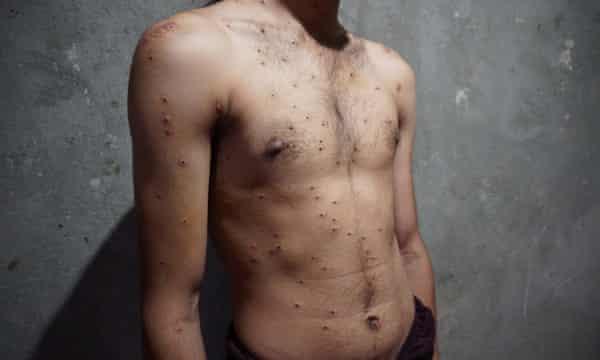 A student's pellet wounds