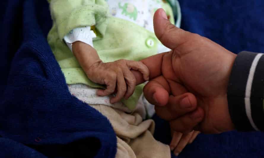 A malnourished child at Al-Sabeen hospital in Sana'a, Yemen, November 2020.