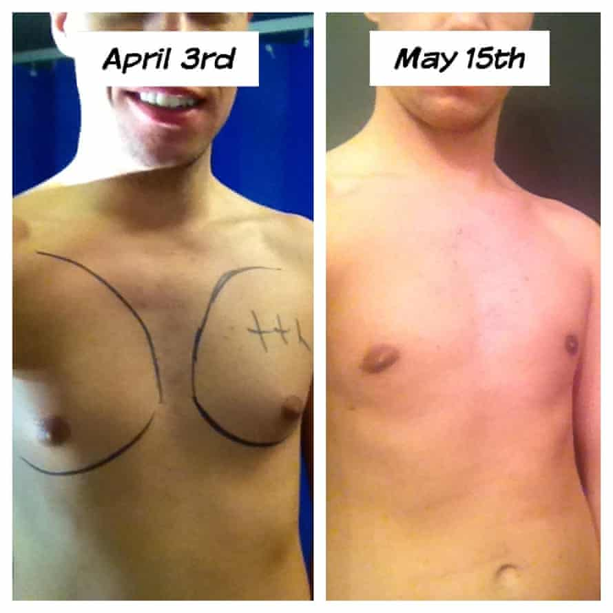 Scott Callery before and after his operation