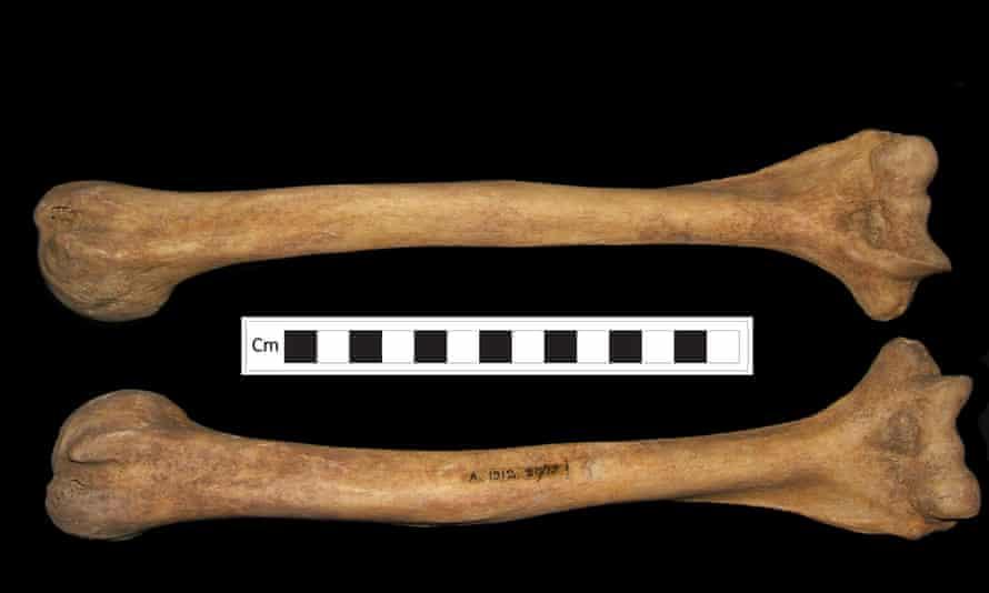 Deformities in the woman's bones correspond to the symptoms of rickets.