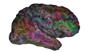 One person's right cerebral hemisphere. The overlaid words, when heard in context, are predicted to evoke strong responses near the corresponding location. Green words are mostly visual and tactile, red words are mostly social.