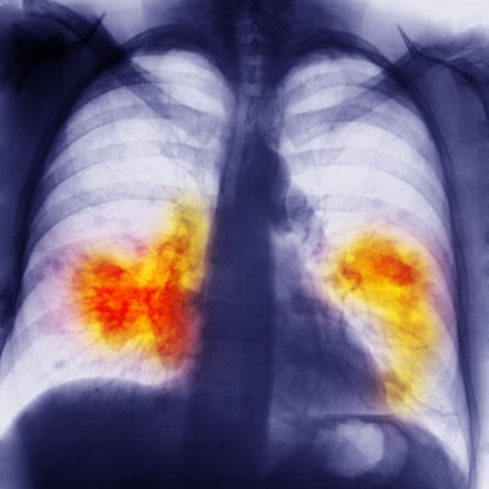 Chest x-ray showing lung cancer.