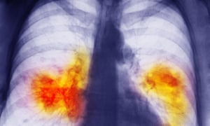 A chest x-ray showing a pair of lungs damaged by cancer