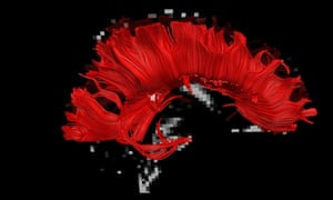 A DTI image of the corpus callosum, as seen from the side, is shown in red on and superimposed on a background MRI image of the brain.