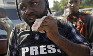 Photojournalist Dieu Nalio Chery holds a healing gauze next to his mouth.