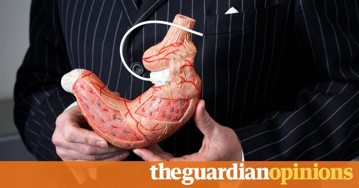 Obese people deserve surgical treatment, too | Richard Welbourn