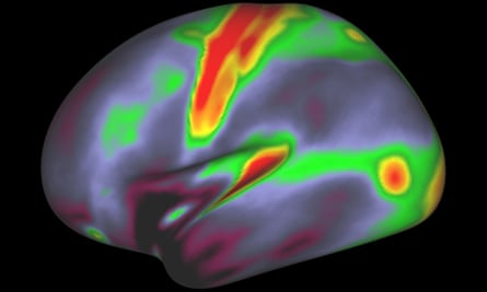 A map of myelin content (red, yellow are high myelin; indigo and blue are low myelin) in the left hemisphere of the brain.