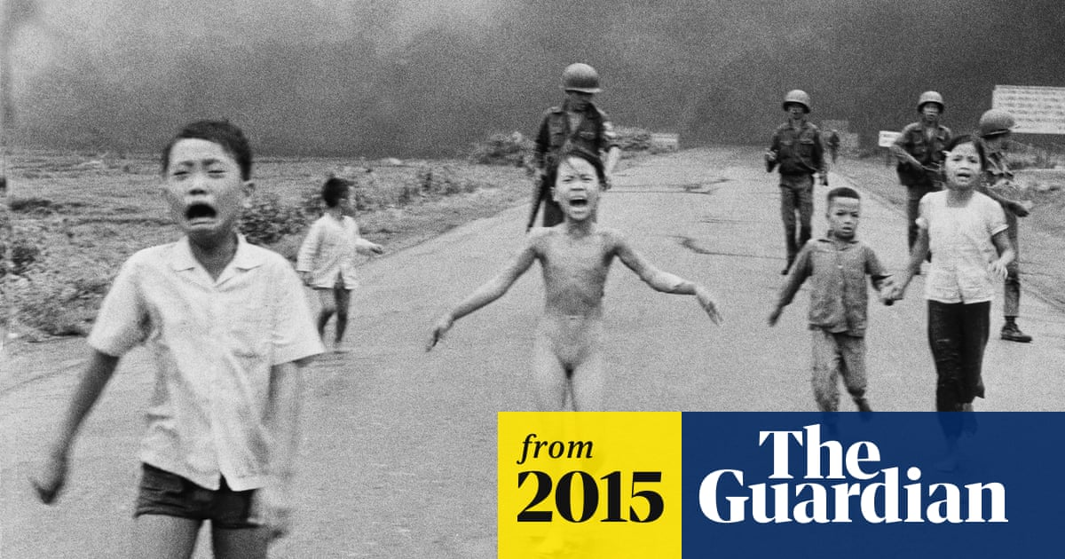 Vietnam war's 'napalm girl' Kim Phuc has laser treatment to