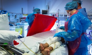 Intensive care at the Western General Hospital, Edinburgh, Scotland.