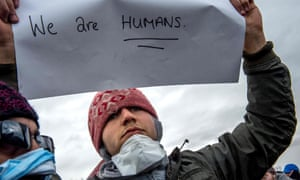 An Iranian refugee with sewn lips holds a placard reading 'We are humans' in protest against partial demolition of Calais camp.