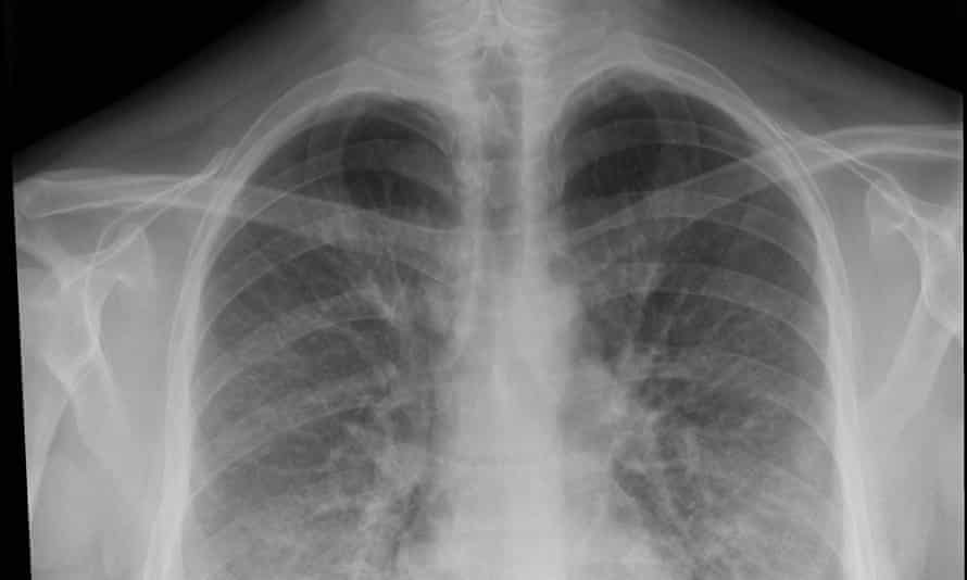 This chest x ray shows lung opacities, densities or whitish cloud-like areas which are typically seen with pneumonias or lung inflammation.