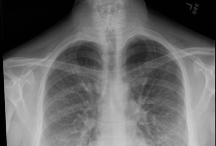 A chest X-ray shows lung opacities, densities or whitish cloud-like areas which are typically seen with unusual pneumonias, fluid in lungs or lung inflammation.