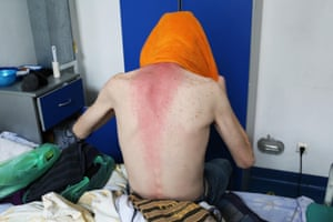 Iulian, 23, dries his hair in his room at the Marius Nasta Institute in Buchares