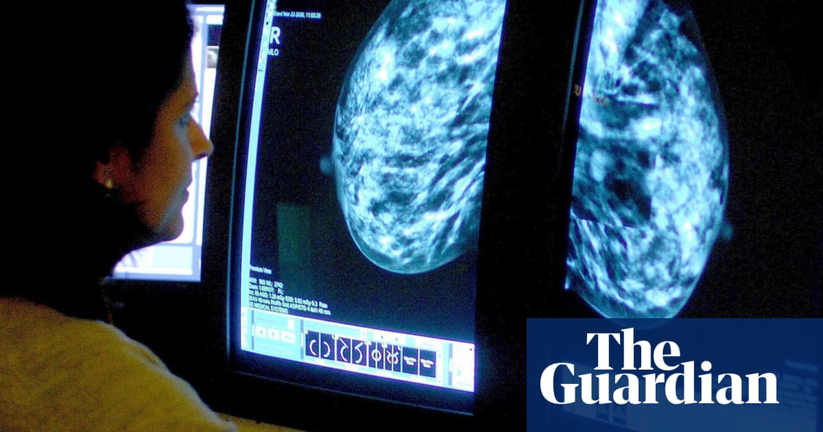 Fears England breast cancer deaths may rise as Covid hits screenings