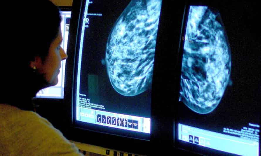 The charity said the cancers may not have been picked up in part because of the pause in breast cancer screening during the first wave of Covid