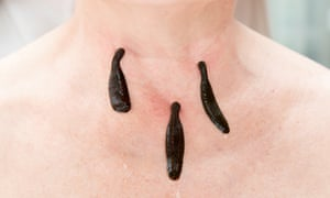 A woman is treated with leeches.