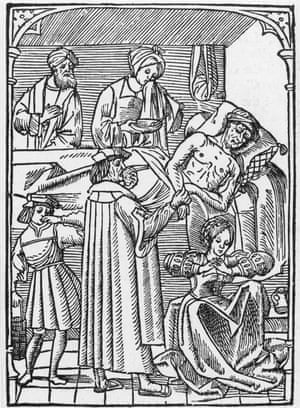 'Infectious fevers' … a 16th century woodcut shows a physician visiting a plague victim.