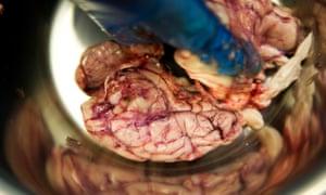 Pig's brain