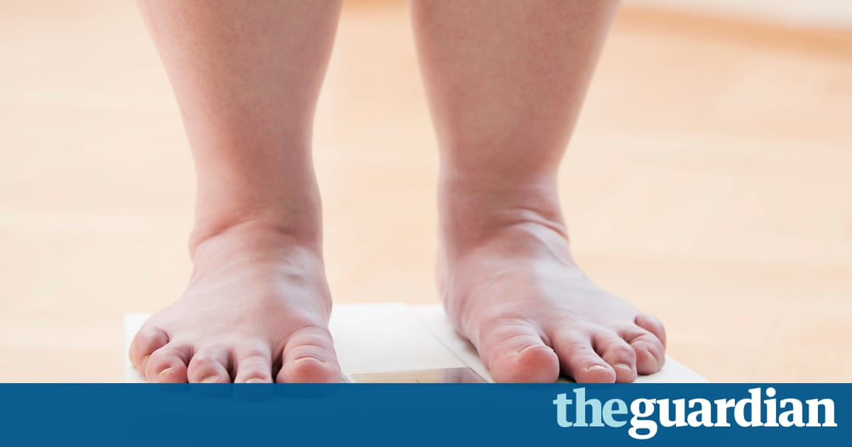 Global cost of obesity-related illness to make $1.2 tn a year from 2025