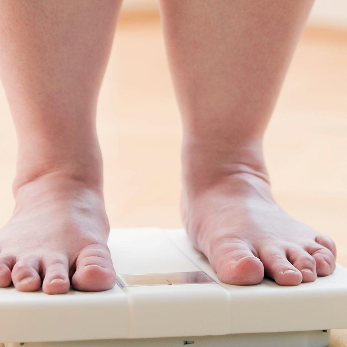 diabetes mellitus dieta control de diabetes