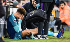 Dele Alli holds his head in his hands after suffering the injury at Craven Cottage