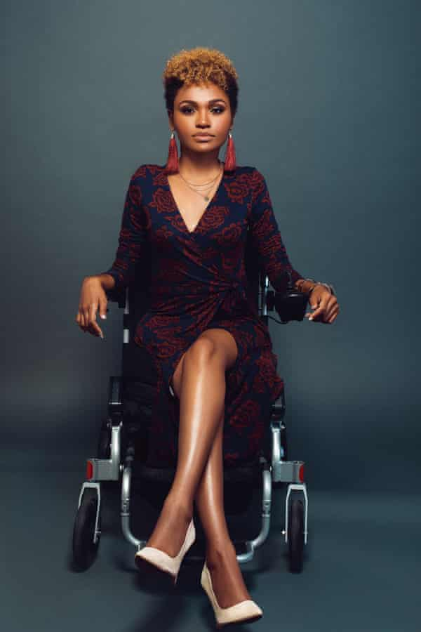 A model with scoliosis and paralysis, as styled by Stephanie Thomas of Cur8able