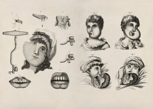 Aggressive growth … on the left, facial tumours, filed and pointed teeth, and various instruments for extraction, taken from Joseph Fox's The Natural History and Diseases of the Human Teeth. On the right, the progression of an aggressive facial tumour in a 13-year-old girl admitted to Guy's Hospital, London.