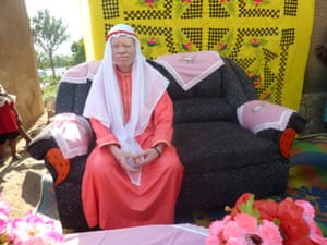 Ramadhan Khalfan, chairman of the Ukerewe Albinism Society, on his wedding day.
