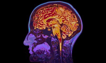 An MRI image of a brain