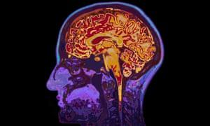 MRI Image Of Head Showing Brain<br>F8P198 MRI Image Of Head Showing Brain