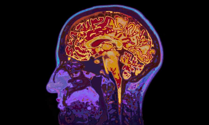The scientists suggest the drug should be given rapidly to patients with mild to moderate traumatic brain injuries.