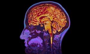 An MRI image of a brain.