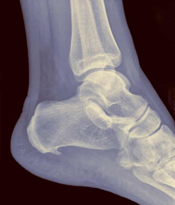 X-ray showing a heel spur caused by plantar fasciitis.