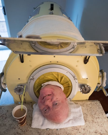 Paul Alexander in his iron lung at home in Dallas Texas September 12, 2019,