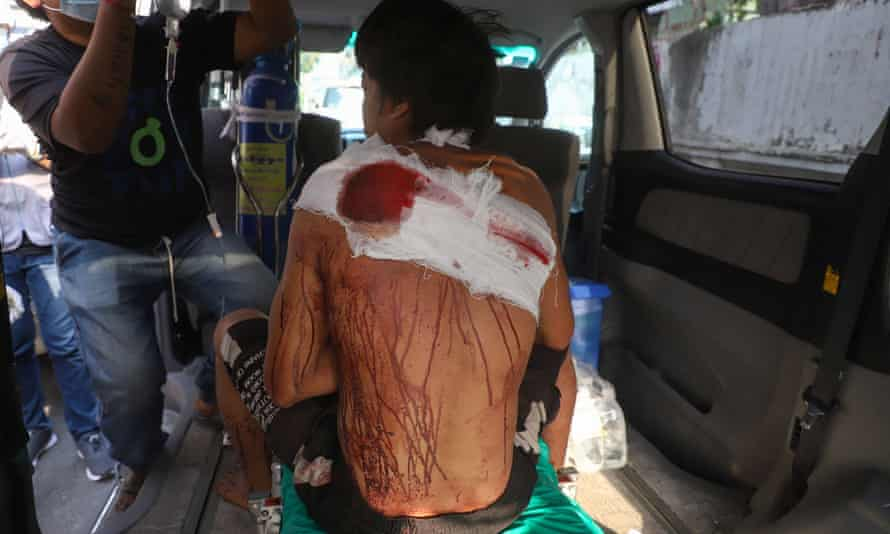 A protester, who was injured during a demonstration in Mandalay.