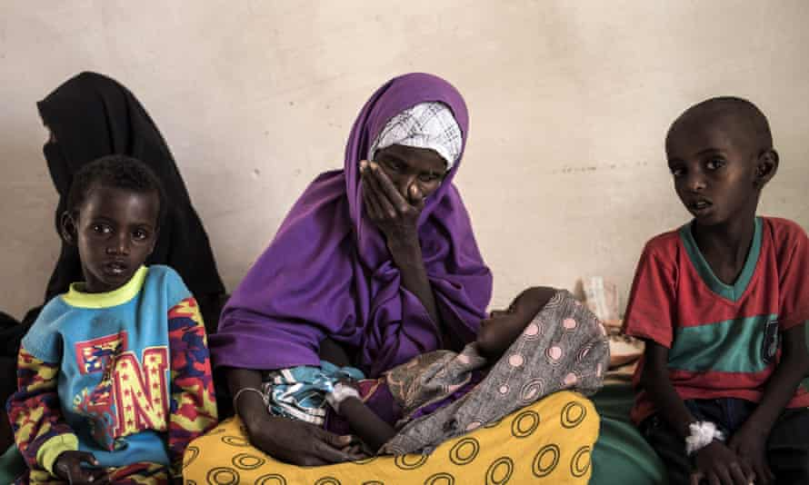 A mother looks at her two-year-old son who's been diagnosed with severe malnutrition in Somalia, currently on the brink of famine.