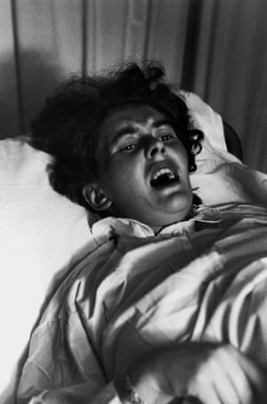 Pain Of Childbirth. A woman gives birth in 1956