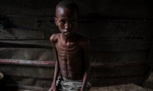 A child with pneumonia in Luanda