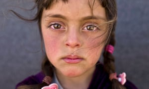 The face of a five-year-old Syrian refugee