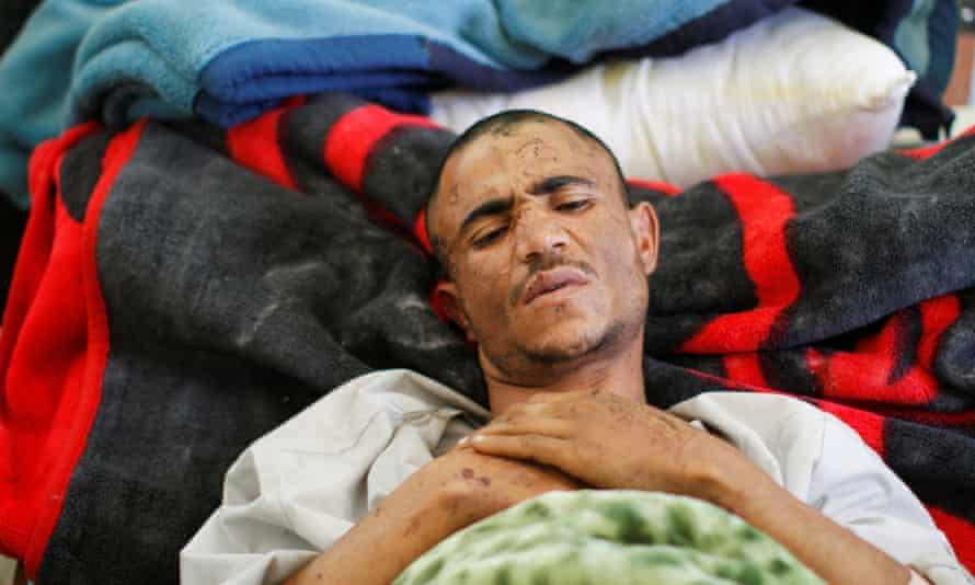 A man injured during the Saudi-led air strike.
