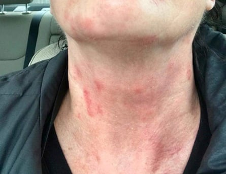 Delta crew members reported rashes.
