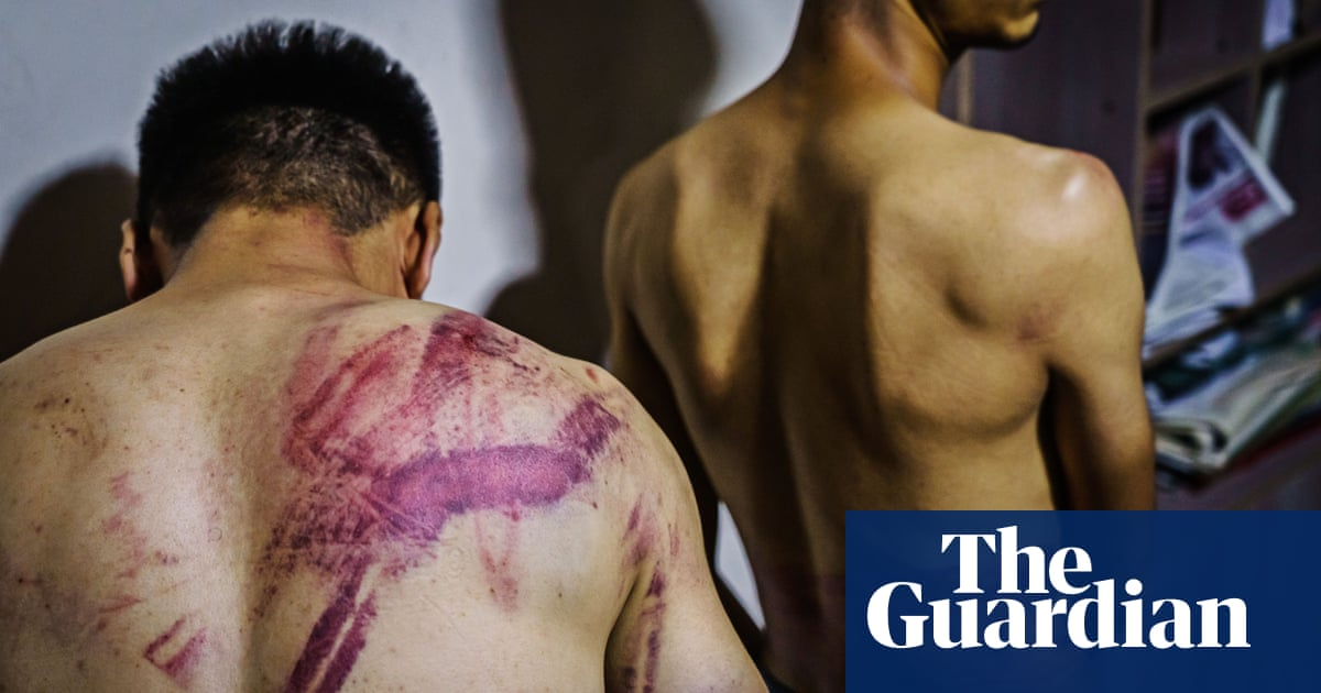 Violent attacks on Afghan journalists by Taliban prompt growing alarm