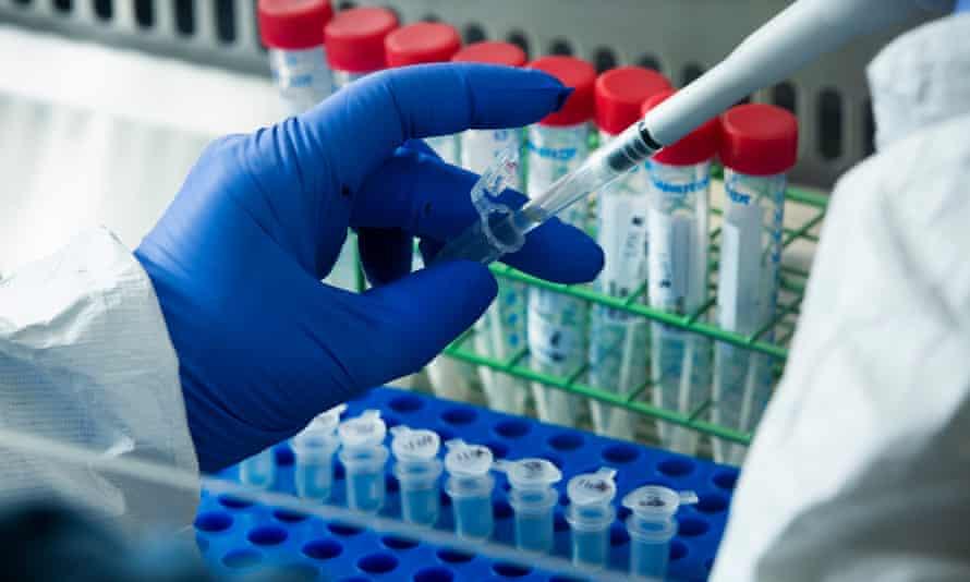 Coronavirus test samples