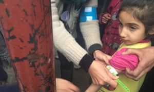 A Unicef employee measures the arm of a malnourished child in Madaya