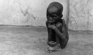 A starving Biafran child in 1968.