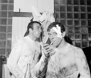 West Bromwich Albion's John Kaye, his head bandaged and smoking a cigarette, with John Talbut after their FA Cup sixth Round second replay against Liverpool at Maine Road in Manchester in April 1968. The Baggies won 2-1